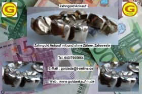 Zahngold Ankauf | Zahngold verkaufen ?