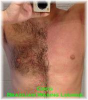 Foto 3 Brazilian Waxing, Enthaarung mit Wax, Depilation, Haarentfernung