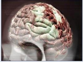 Schimmel Im Gehirn