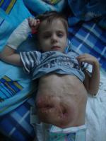Foto 2 Einen Junge (4,3 Jahre alt) braucht dringend Hilfe!