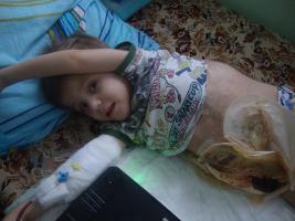Foto 3 Einen Junge (4,3 Jahre alt) braucht dringend Hilfe!