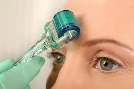 Foto 3 Mezotherapy - Effektive Lösung gegen Falten, Narben oder Pigmentflecken
