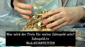 Schrott Zahngoldpreis