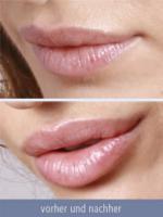 Lippen Küssen